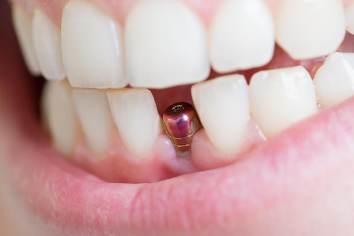 Implant dentaire Lyon : quand est ce qu'il faut éviter faire la pose d'implant dentaire ?